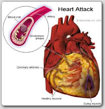 heart attack precautions 1