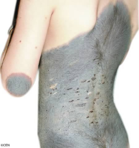 rarest birthmark 7