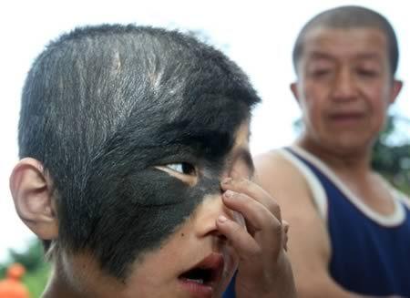 rarest birthmark 9