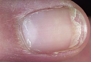 fingernails 5