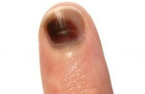fingernails 6