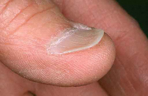 fingernails 7