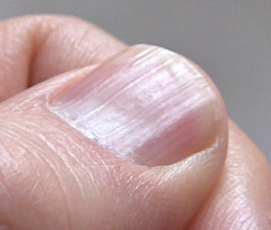 fingernails 8