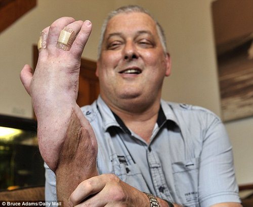 hand transplant 1